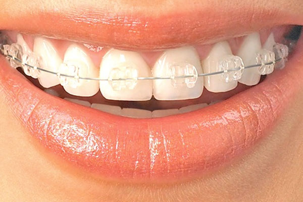 Orthodontics Clinton Township, MI