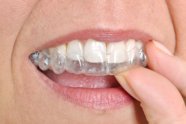 Invisalign Clinton Township, MI